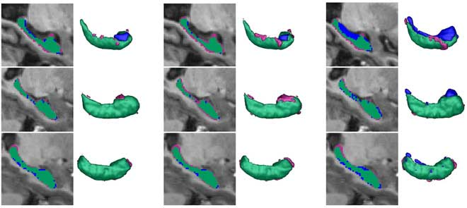 Assessing the structural integrity of the hippocampus is an essential step in the prevention, diagnosis and follow-up of various brain disorders, including dementia and Alzheimer's disease. This paper presents the development and validation of an innovative 3D fully automatic method to be used on top of the multi-atlas concept for hippocampus segmentation.