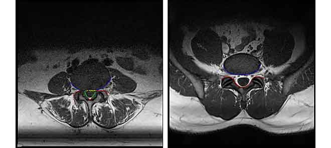 Boundary Delineation of MRI Images for Lumbar Spinal Stenosis Detection Through Semantic Segmentation Using Deep Neural Networks